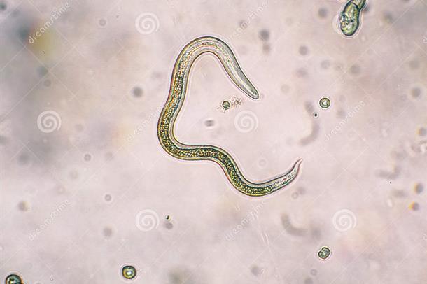 INTESTINAL WORMS. mikroskop bilde